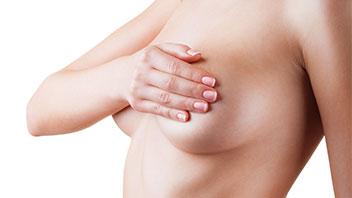 Aumento mamario home