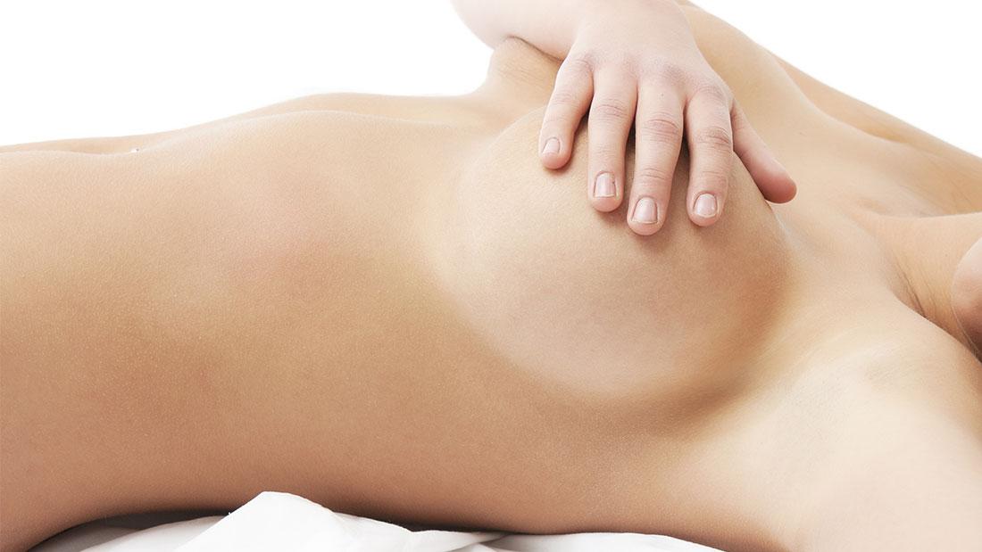 Aumento mamario o mamoplastia de aumento