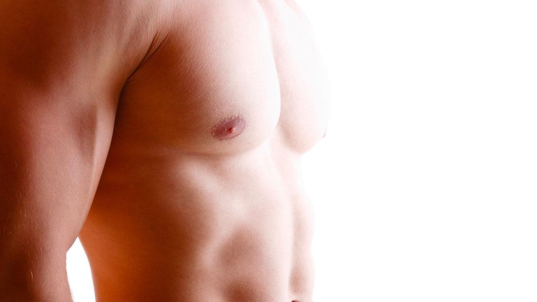 Ginecomastia y neoplasia de mama en el varón