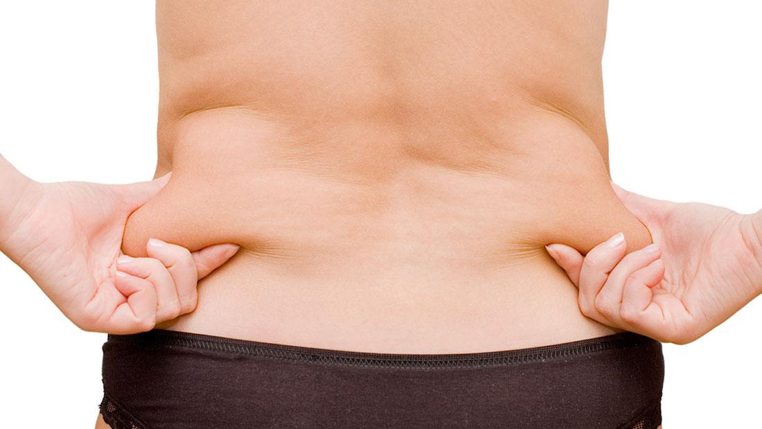 El tratamiento de la grasa corporal con liposucción