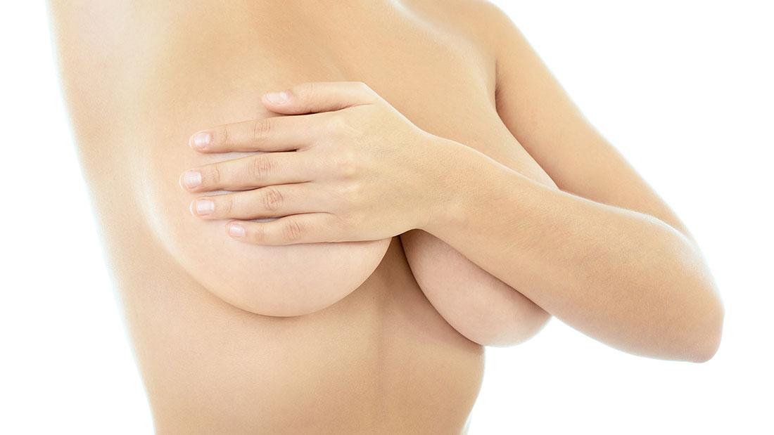 mamas caídas tratamiento